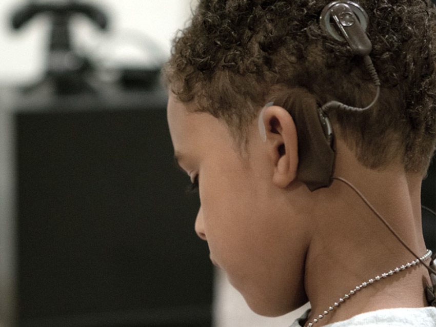 Close up image of Ethan's cochlear implants.