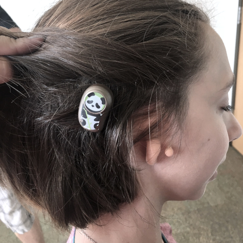 Sophie pulls back hair to show her bone anchored hearing aid.
